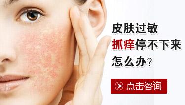 如何治皮肤过敏