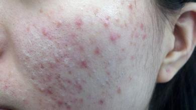 皮肤过敏是怎么长的