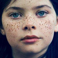 雀斑的症状类型有哪些