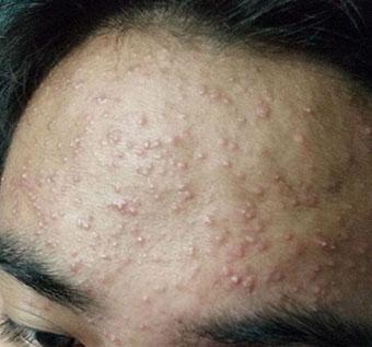 青春痘的病因是什么